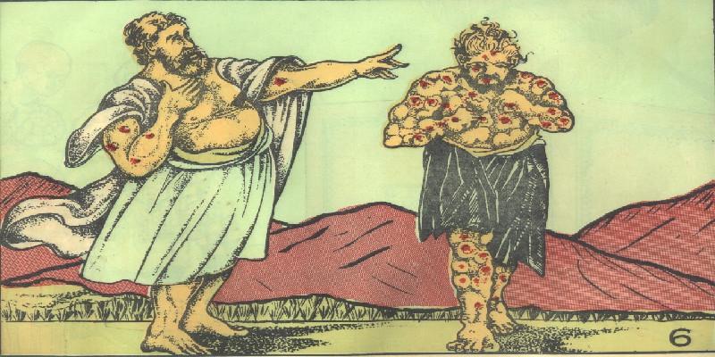 Representación de la enfermedad de la lepra en la Antiguedad